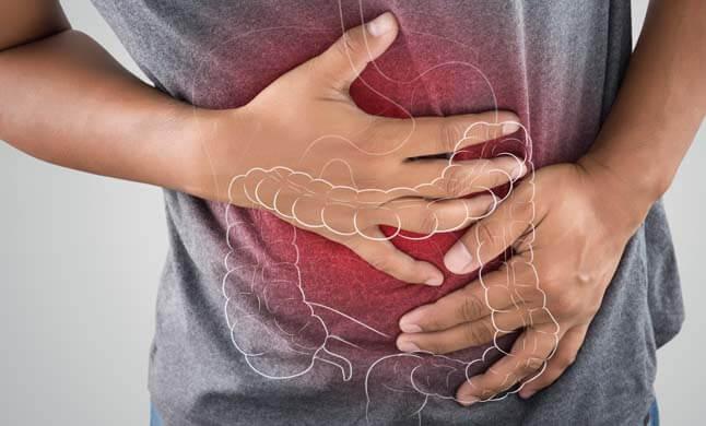 Síndrome do Intestino Irritável site dr olavo filho