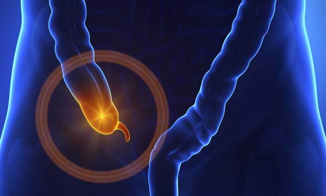 apendicite site dr olavo filho